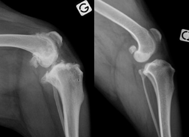 « L'arthrose est plutôt perverse » : un spécialiste alerte sur cette maladie souvent invisible